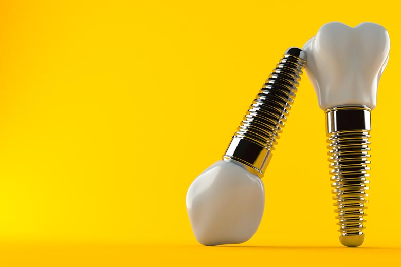 two dental implants with one upside down and leaning on the upright other one against a bright yellow background