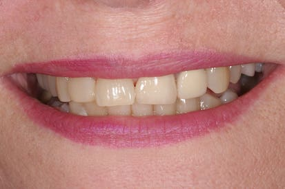 smiling woman wearing pink lipstick with corrected and beautiful teeth